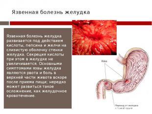 Язвенная болезнь желудка Язвенная болезнь желудка развивается под действием кисл