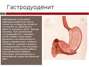 Гастродуоденит заболевание затрагивает двенадцатиперстную кишку, слизистая котор