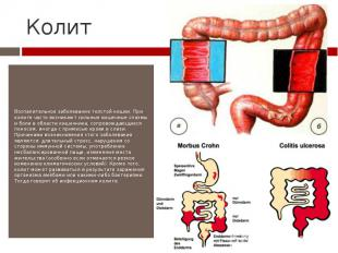 Колит Воспалительное заболевание толстой кишки. При колите часто возникают сильн