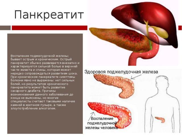 Лечение сахарного диабета при панкреатите