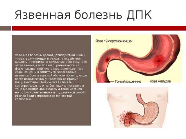 Язвенная болезнь ДПК Язвенная болезнь двенадцатиперстной кишки – язва, возникающая в результате действия кислоты и пепсина на слизистую оболочку. Это заболевание, как правило, развивается на фоне повышенной кислотности желудочного сока. Основным сим…
