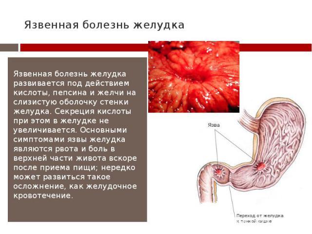 Язвенная болезнь желудка Язвенная болезнь желудка развивается под действием кислоты, пепсина и желчи на слизистую оболочку стенки желудка. Секреция кислоты при этом в желудке не увеличивается. Основными симптомами язвы желудка являются рвота и боль …