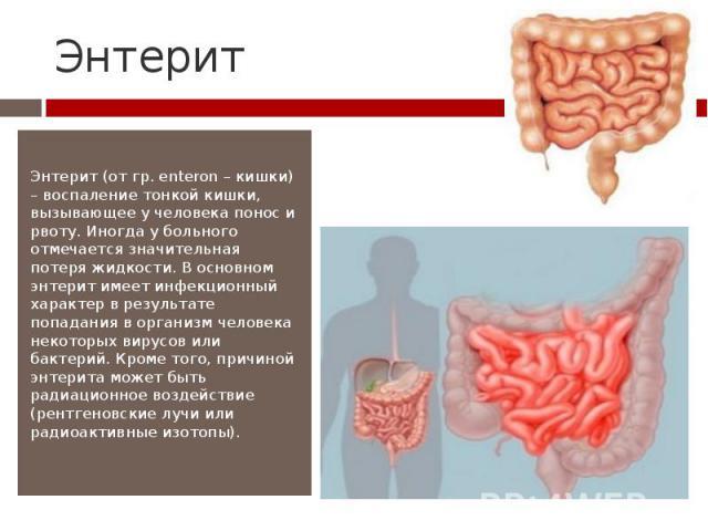 Энтерит Энтерит (от гр. enteron – кишки) – воспаление тонкой кишки, вызывающее у человека понос и рвоту. Иногда у больного отмечается значительная потеря жидкости. В основном энтерит имеет инфекционный характер в результате попадания в организм чело…