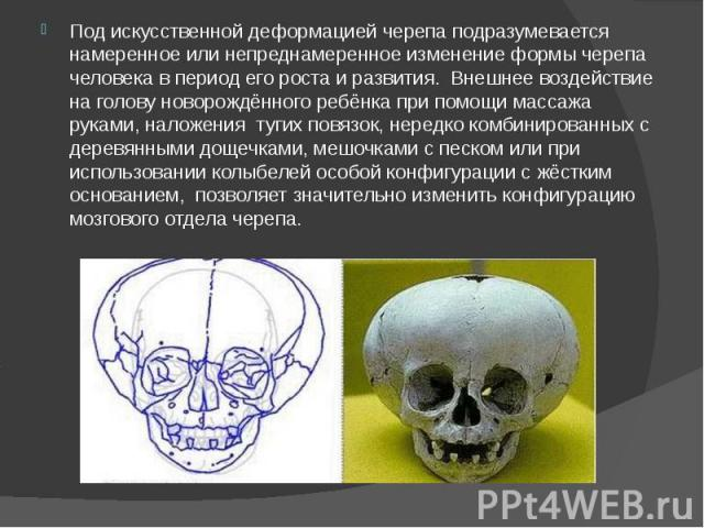 Под искусственной деформацией черепа подразумевается намеренное или непреднамеренное изменение формы черепа человека в период его роста и развития. Внешнее воздействие на голову новорождённого ребёнка при помощи массажа руками, наложения тугих повяз…