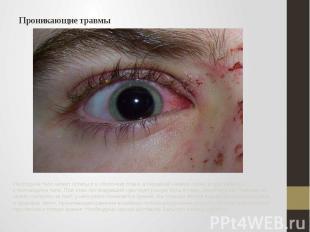 Проникающие травмы Инородное тело может остаться в оболочках глаза, в передней к