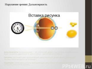 Нарушение зрения: Дальнозоркость Дальнозоркость (гиперметропия) – это оптический