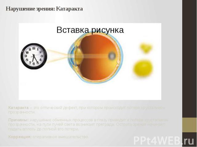 Нарушение зрения: Катаракта Катаракта – это оптический дефект, при котором происходит потеря хрусталиком прозрачности. Причины: нарушение обменных процессов в глазу приводит к потере хрусталиком прозрачности, на пути лучей света возникает преграда. …