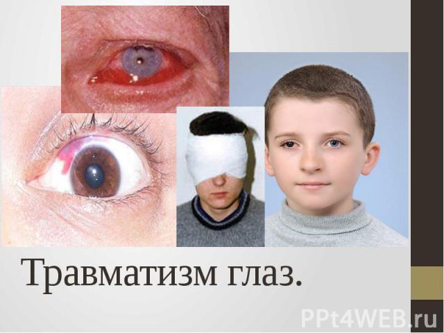 Травматизм глаз.