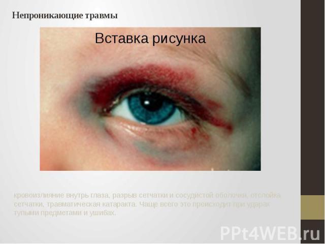 Непроникающие травмы кровоизлияние внутрь глаза, разрыв сетчатки и сосудистой оболочки, отслойка сетчатки, травматическая катаракта. Чаще всего это происходит при ударах тупыми предметами и ушибах.