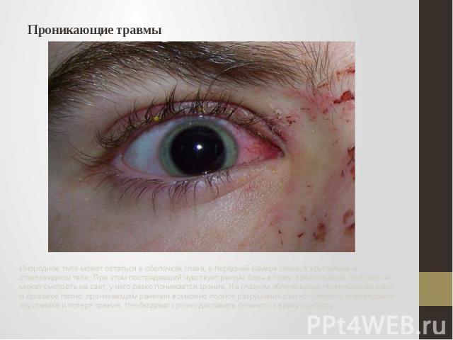 Проникающие травмы Инородное тело может остаться в оболочках глаза, в передней камере глаза, в хрусталике и стекловидном теле. При этом пострадавший чувствует резкую боль в глазу, слезотечение. Человек не может смотреть на свет, у него резко понижае…
