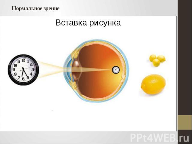 Нормальное зрение