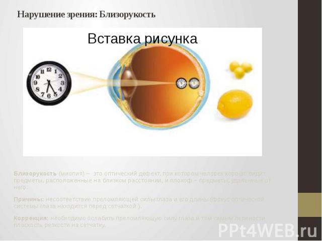 Нарушение зрения: Близорукость Близорукость (миопия) – это оптический дефект, при котором человек хорошо видит предметы, расположенные на близком расстоянии, и плохоф – предметы, удаленные от него. Причины: несоответствие преломляющей силы глаза и е…