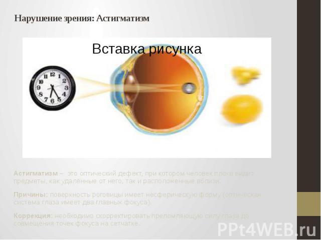 Нарушение зрения: Астигматизм Астигматизм – это оптический дефект, при котором человек плохо видит предметы, как удалённые от него, так и расположенные вблизи. Причины: поверхность роговицы имеет несферическую форму (оптическая система глаза имеет д…