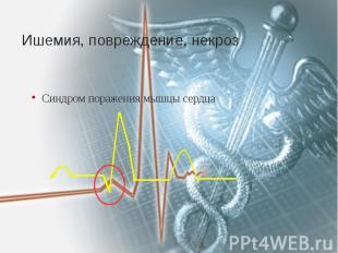 Ишемия, повреждение, некроз Синдром поражения мышцы сердца