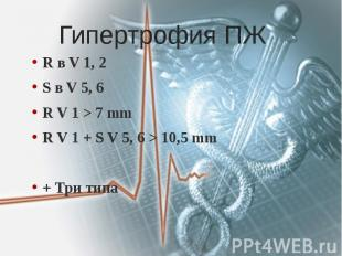 Гипертрофия ПЖ R в V 1, 2 S в V 5, 6 R V 1 > 7 mm R V 1 + S V 5, 6 > 10,5