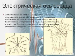 Электрическая ось сердца Электрическая ось сердца— это проекция суммарного