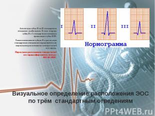 Визуальное определение расположения ЭОС по трём стандартным отведениям Амплитуда