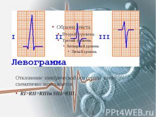 Отклонение электрической оси сердца влево схематично записывается: Отклонение эл