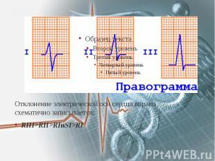 Отклонение электрической оси сердца вправо схематично записывается: Отклонение э