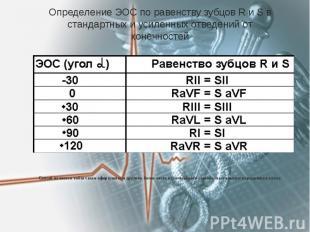 Определение ЭОС по равенству зубцов R и S в стандартных и усиленных отведений от