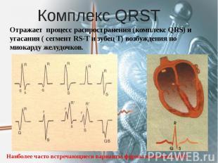 Комплекс QRSТ Отражает процесс распространения (комплекс QRS) и угасания ( сегме