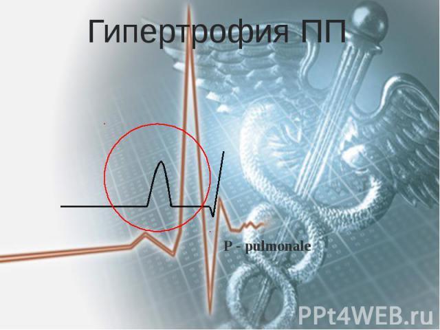 Гипертрофия ПП Р - pulmonale
