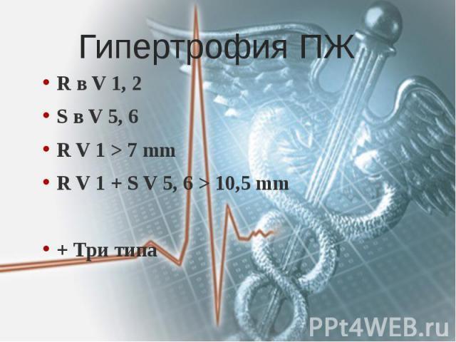Гипертрофия ПЖ R в V 1, 2 S в V 5, 6 R V 1 > 7 mm R V 1 + S V 5, 6 > 10,5 mm + Три типа