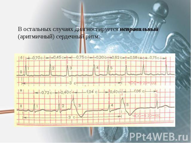 В остальных случаях диагностируется неправильный (аритмичный) сердечный ритм.