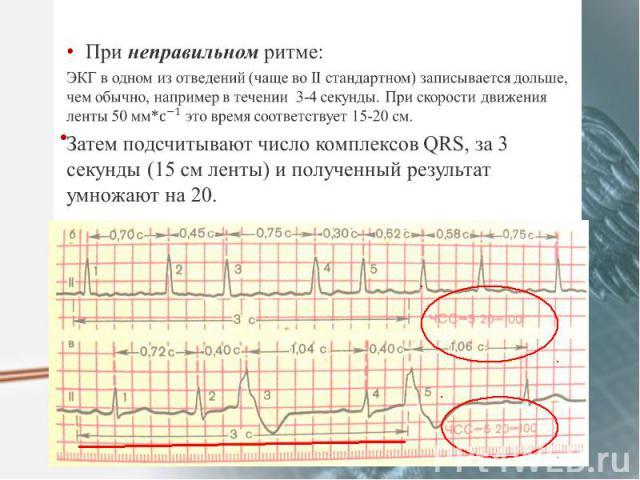 При неправильном ритме: При неправильном ритме: ЭКГ в одном из отведений (чаще во II стандартном) записывается дольше, чем обычно, например в течении 3-4 секунды. При скорости движения ленты 50 мм* это время соответствует 15-20 см. Затем подсчитываю…