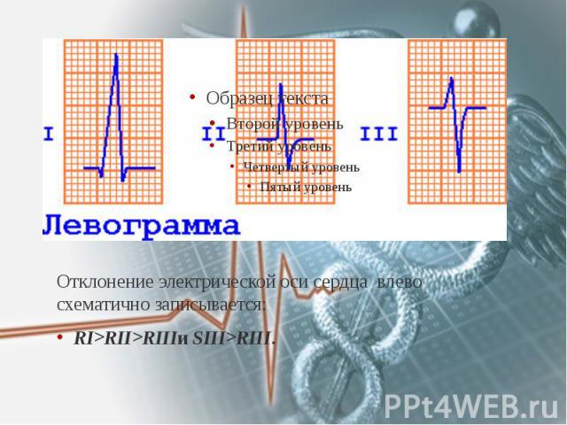 Отклонение электрической оси сердца влево схематично записывается: Отклонение электрической оси сердца влево схематично записывается: RI>RII>RIIIи SIII>RIII.