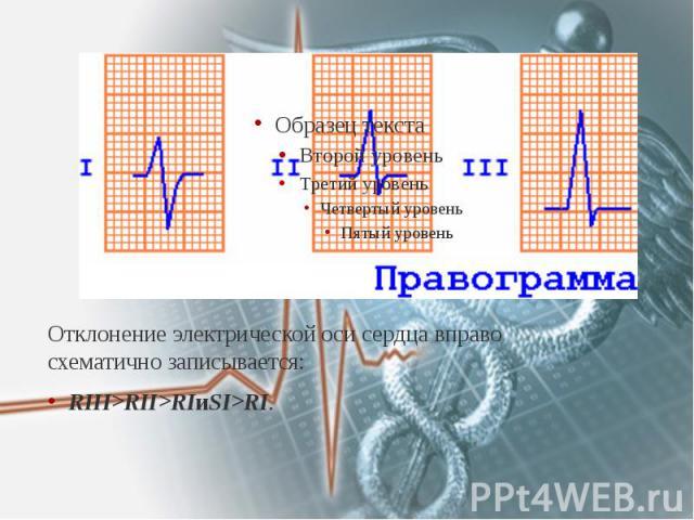 Отклонение электрической оси сердца вправо схематично записывается: Отклонение электрической оси сердца вправо схематично записывается: RIII>RII>RIиSI>RI.