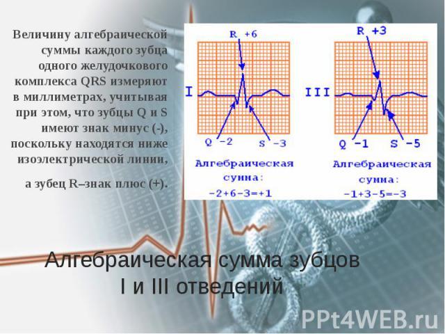 Алгебраическая сумма зубцов I и III отведений Величину алгебраической суммы каждого зубца одного желудочкового комплекса QRS измеряют в миллиметрах, учитывая при этом, что зубцы Q и S имеют знак минус (-), поскольку находятся ниже изоэлектрической л…
