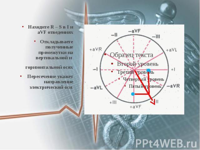 Находите R – S в I и aVF отведениях Находите R – S в I и aVF отведениях Откладываете полученные промежутки на вертикальной и горизонтальной осях Пересечение укажет направление электрической оси