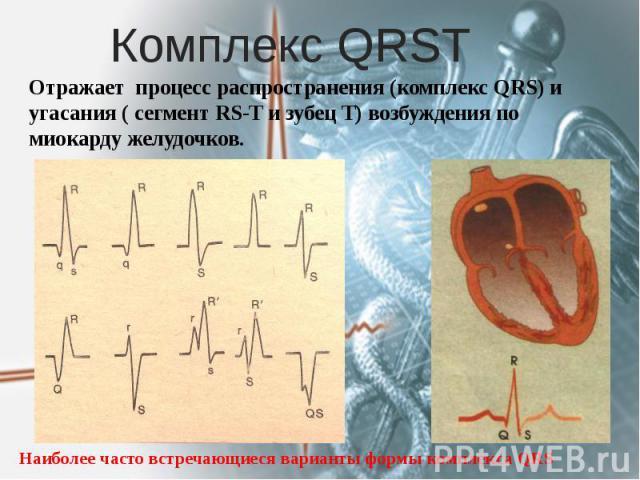Комплекс QRSТ Отражает процесс распространения (комплекс QRS) и угасания ( сегмент RS-T и зубец T) возбуждения по миокарду желудочков.