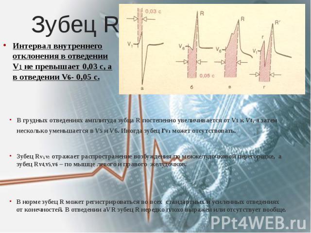 Зубец R В грудных отведениях амплитуда зубца R постепенно увеличивается от V1 к V4, а затем несколько уменьшается в V5 и V6. Иногда зубец rv1 может отсутствовать. Зубец Rv1,v2 отражает распространение возбуждения по межжелудочковой перегородке, а зу…