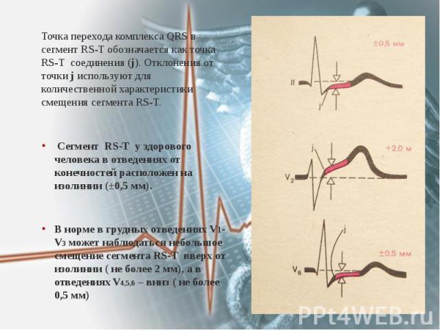 Точка перехода комплекса QRS в сегмент RS-T обозначается как точка RS-T соединения (j). Отклонения от точки j используют для количественной характеристики смещения сегмента RS-T. Точка перехода комплекса QRS в сегмент RS-T обозначается как точка RS-…