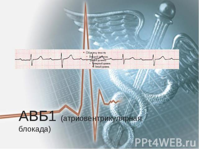 АВБ1 (атриовентрикулярная блокада)