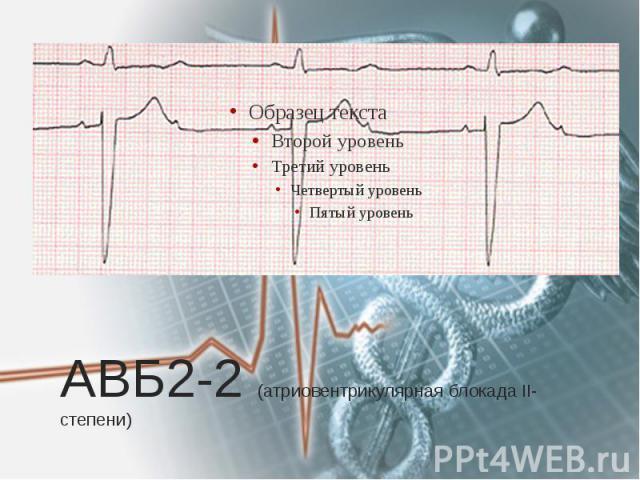 АВБ2-2 (атриовентрикулярная блокада II-степени)
