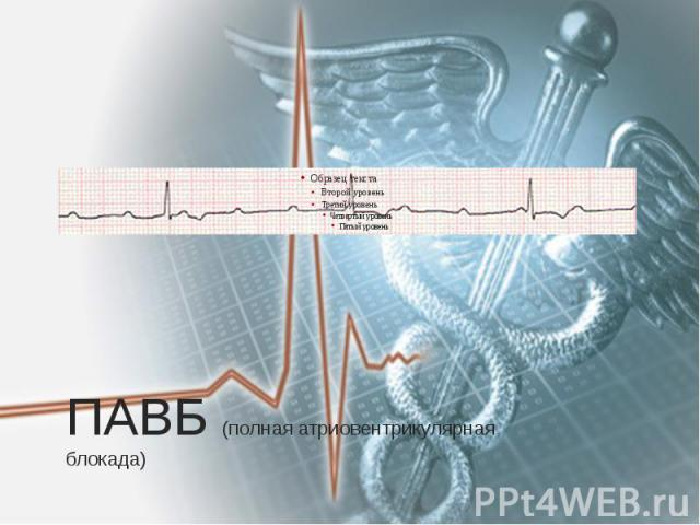 ПАВБ (полная атриовентрикулярная блокада)