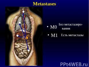 Metastases M0