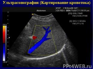 Ультрасонография (Картирование кровотока)