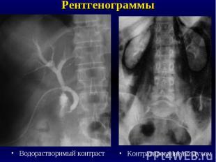 Рентгенограммы Нативная (обзорная)