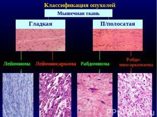Классификация опухолей Мышечная ткань