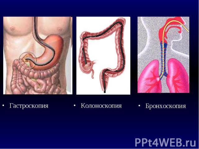Неинвазивная эндоскопия