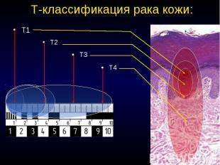 T-классификация рака кожи: Т1