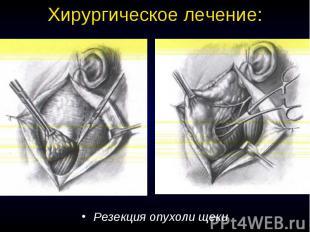 Хирургическое лечение: Резекция опухоли щеки