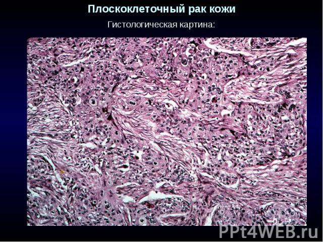 Плоскоклеточный рак кожи Гистологическая картина: