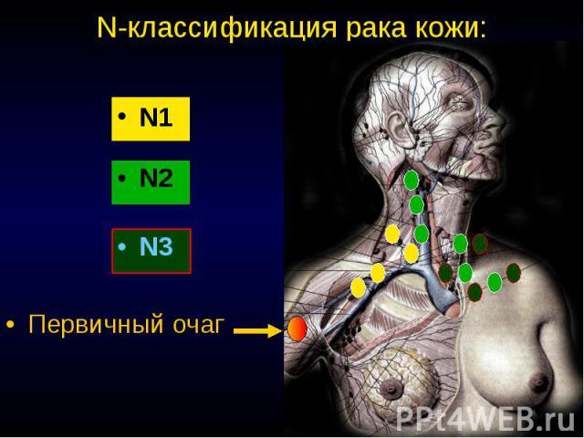 N-классификация рака кожи: N1