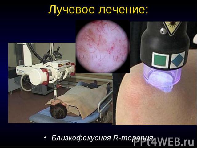 Лучевое лечение: Близкофокусная R-терапия