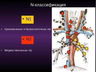 N-классификация N1